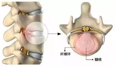 关于腰椎间盘突出问题的预防及解决方法